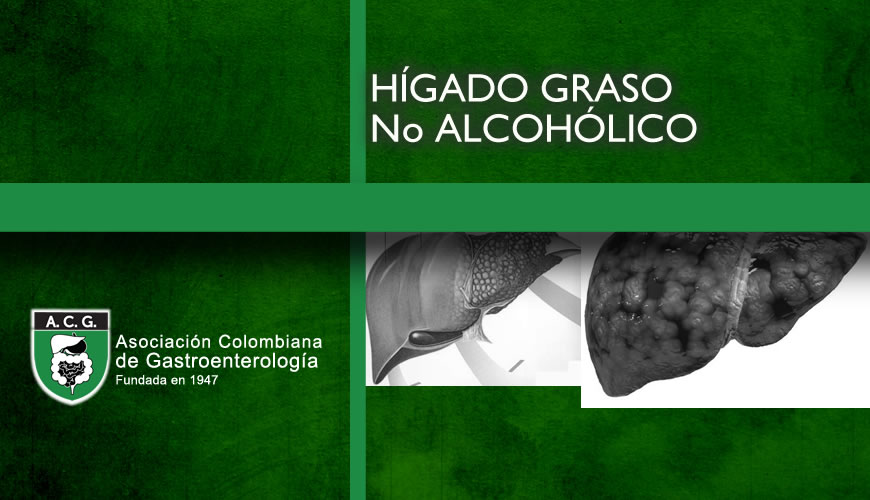 Hígado Graso no Alcohol
