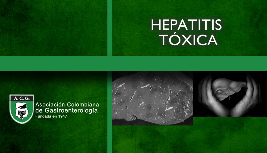 Hepatitis Tóxica